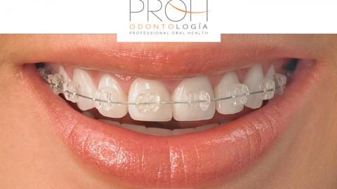 Nuevo Convenio: PROH Odontología