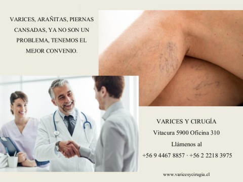 Nuevo convenio: Veins & Co. - Varices, Cirugía y Rehabilitación