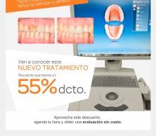 Convenio dental: Nuevo tratamiento de corona de porcelana en 1 sesión