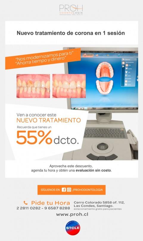 Convenio dental: Nuevo tratamiento de corono de porcelana en 1 sesión
